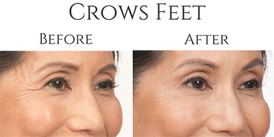 Botox Crows Feet Before & After