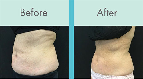 Coolsculpting before and after stomach