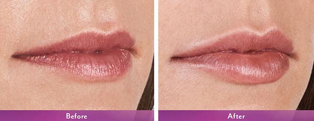 Vobella-Lips-B&A