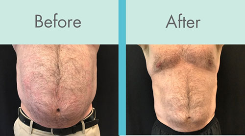 CoolSculpting Before and After - man stomach